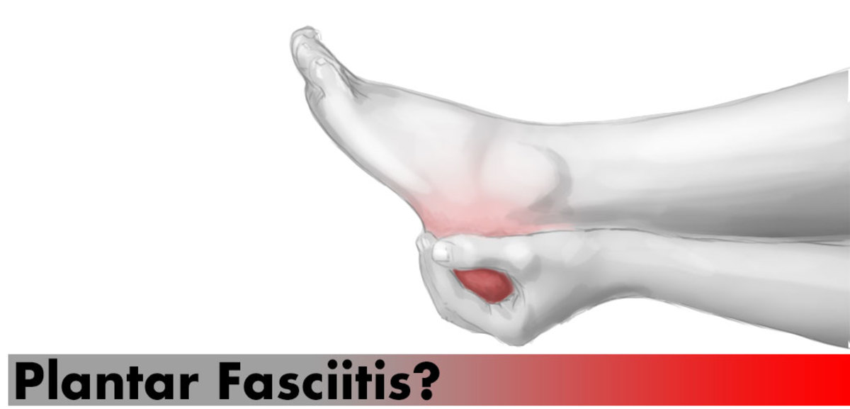 Do you suffer from plantar fasciitis?