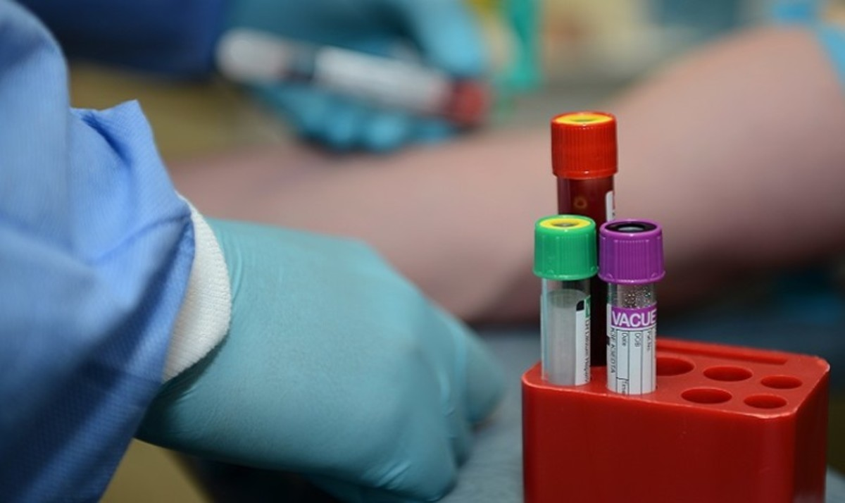 What to Expect From Blood Test Results