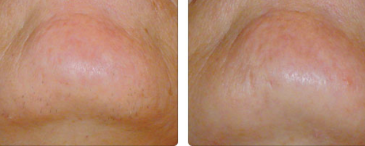 Before and After with Facial Epilators