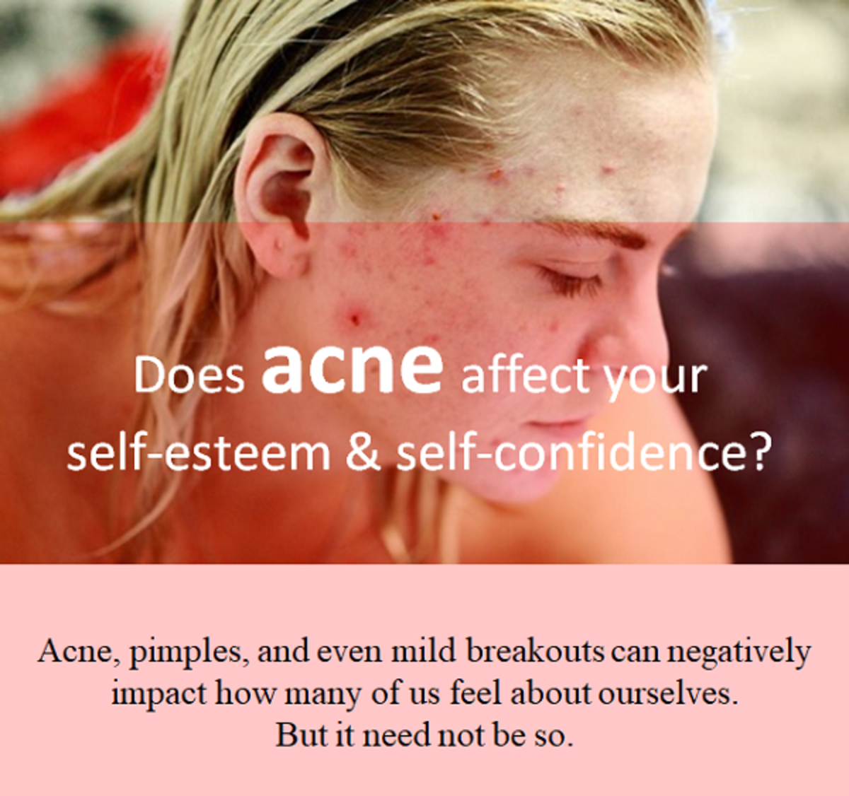 Acne can negatively affect your confidence.