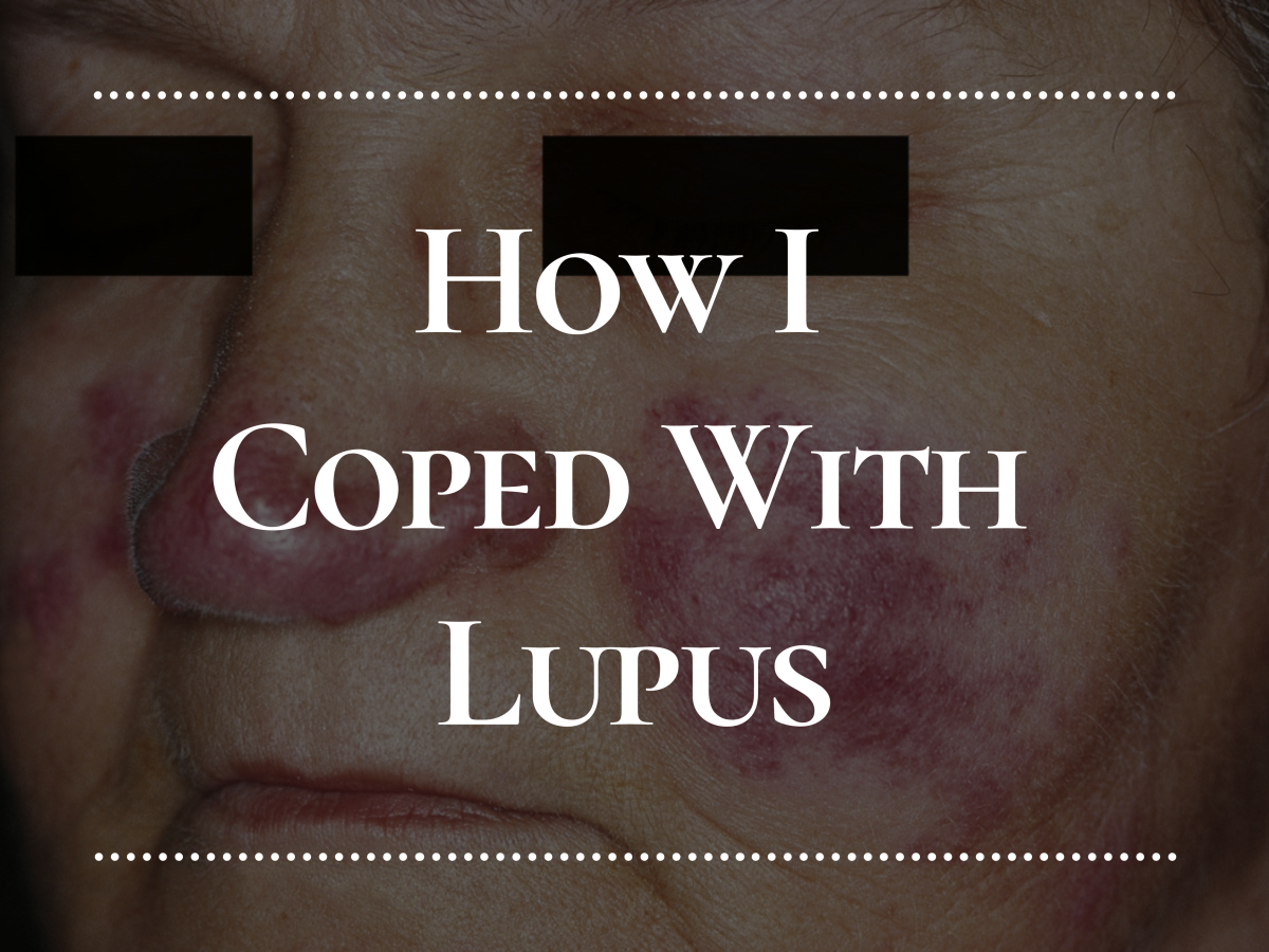 My experience with lupus: when I first got it, how it affected me, how I treated it, and my life today.