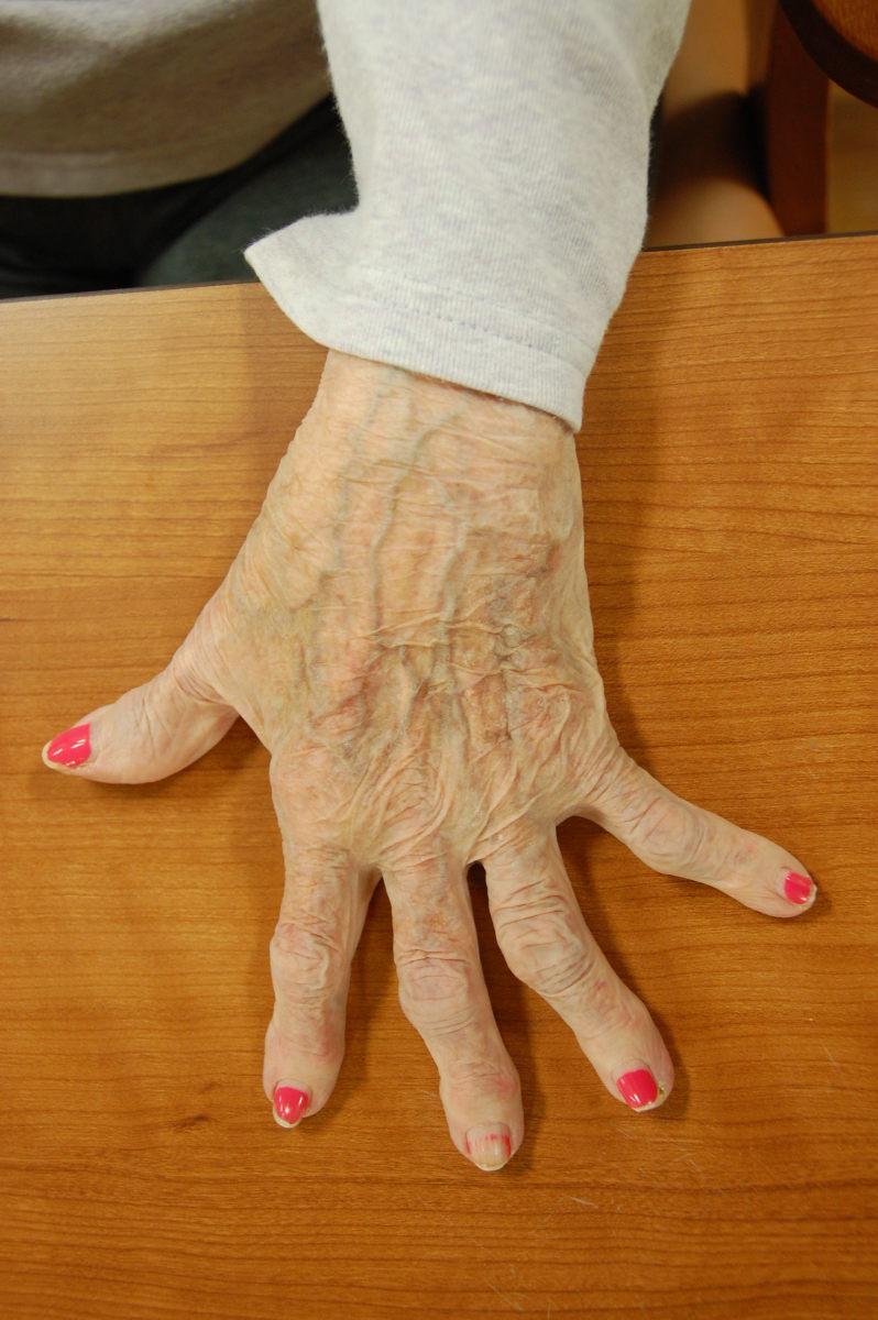 Strategies to Relieve Arthritis Pain