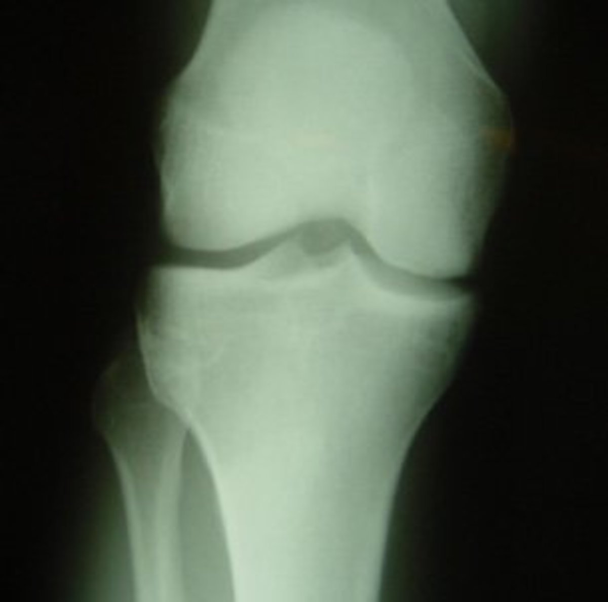 The AP knee X-ray view shows the knee from directly in front.