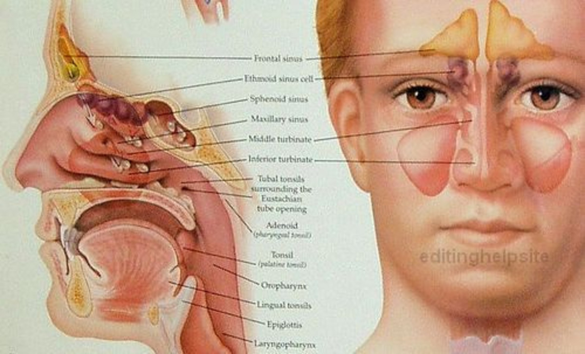 We have maxillary, frontal, ethmoid and sphenoid sinuses.