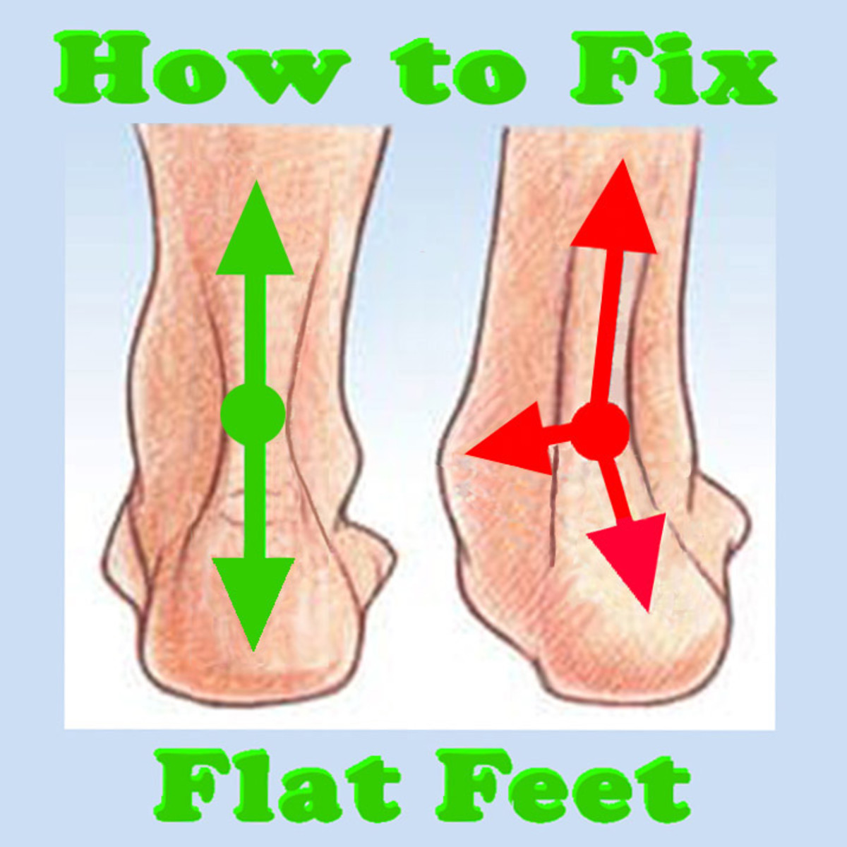 How to Fix Flat Feet (With Targeted Exercises)