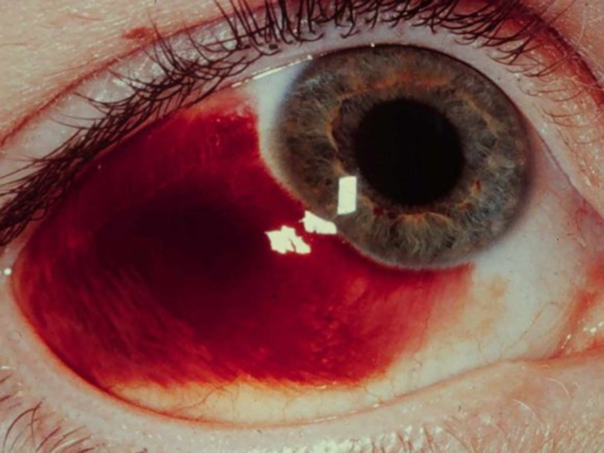 A broken blood vessel in the eye is correctly known as a sub-conjunctival