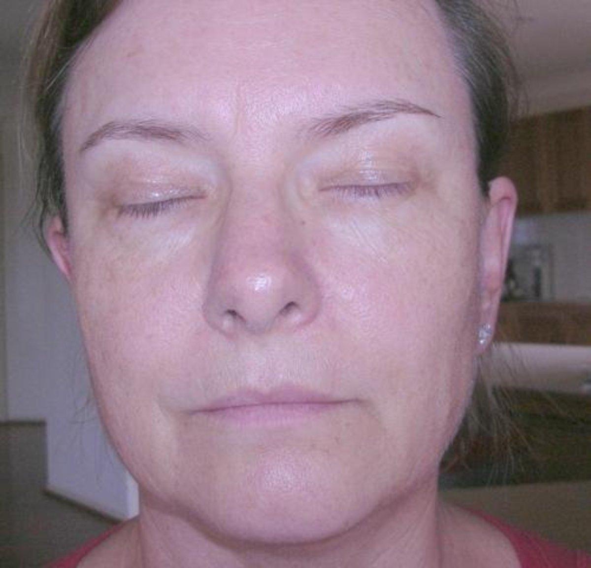 Skin condition after using Baiden Mitten for 2 months 1X week