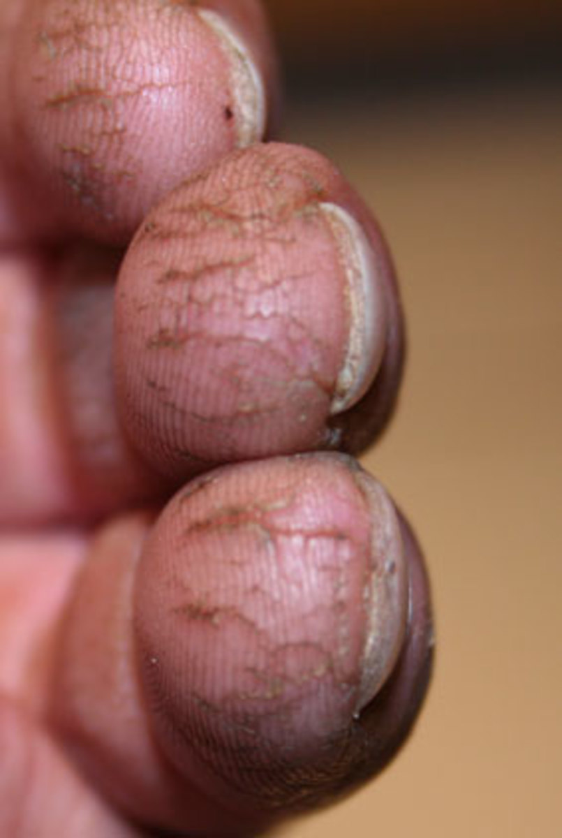Cracked fingers & fingertips - how to prevent and treat them