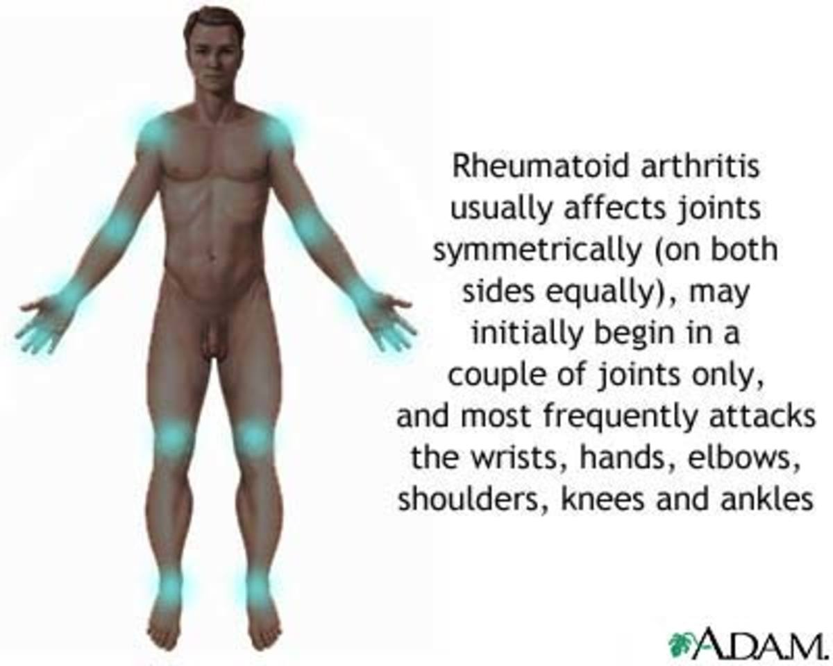 The disease attacks the body in a symmetric pattern.