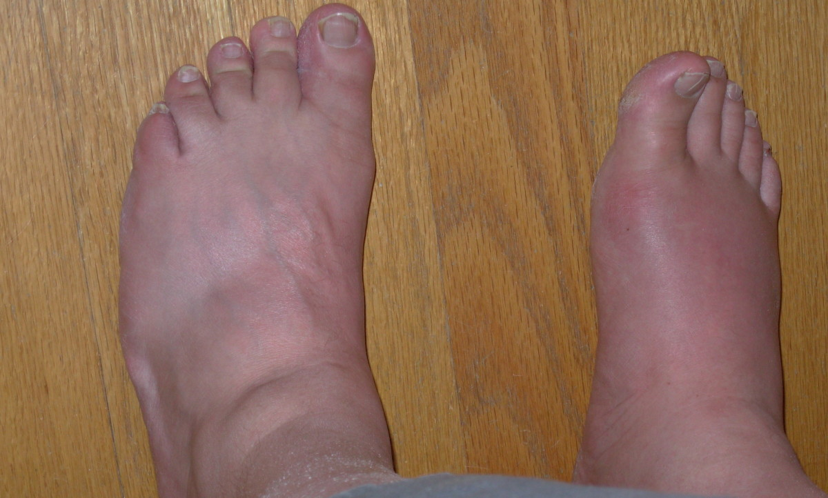 8 Foods to Avoid With Gout