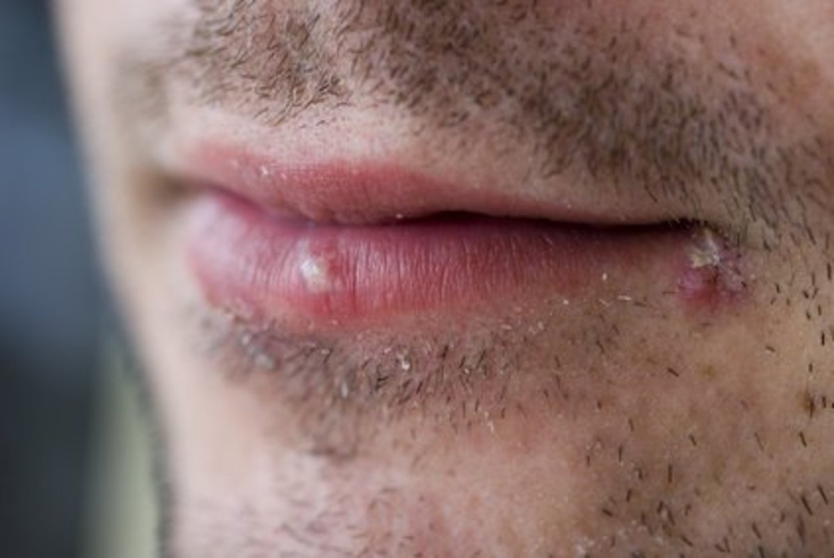 How to Use Garlic to Wipe out Cold Sores in One Fell Swoop