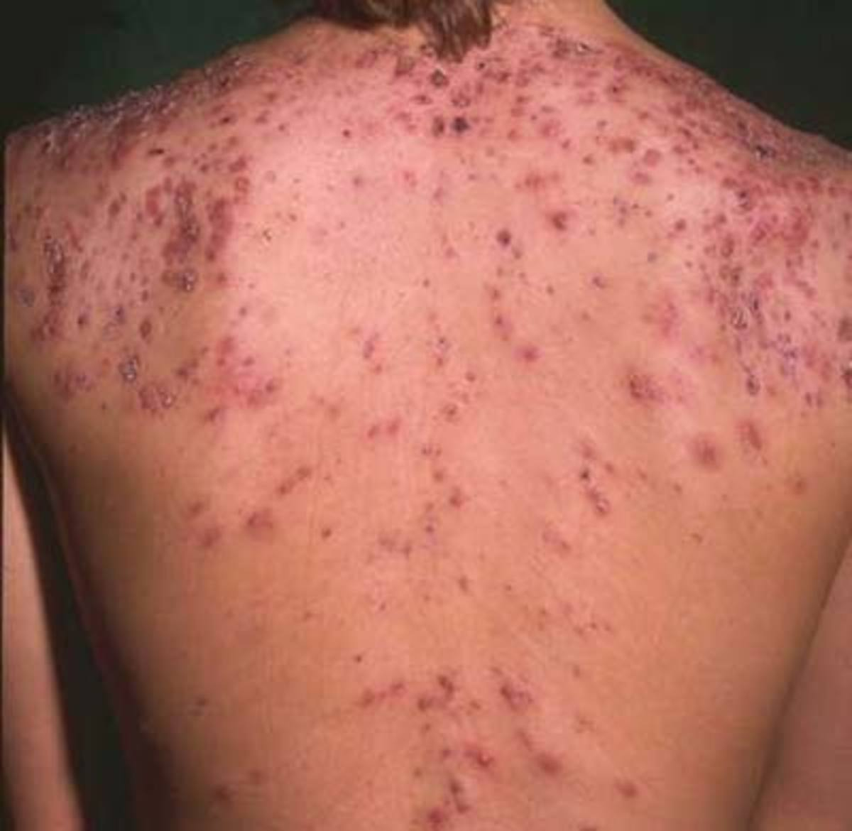 How I Got Rid of My Back Acne (Backne)