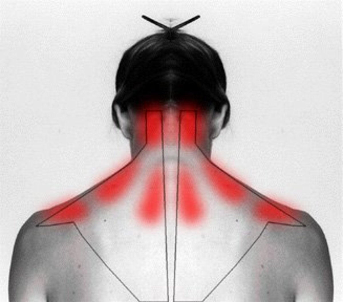 Learn why it hurts and how to self cure your stiff neck and shoulder  pain.