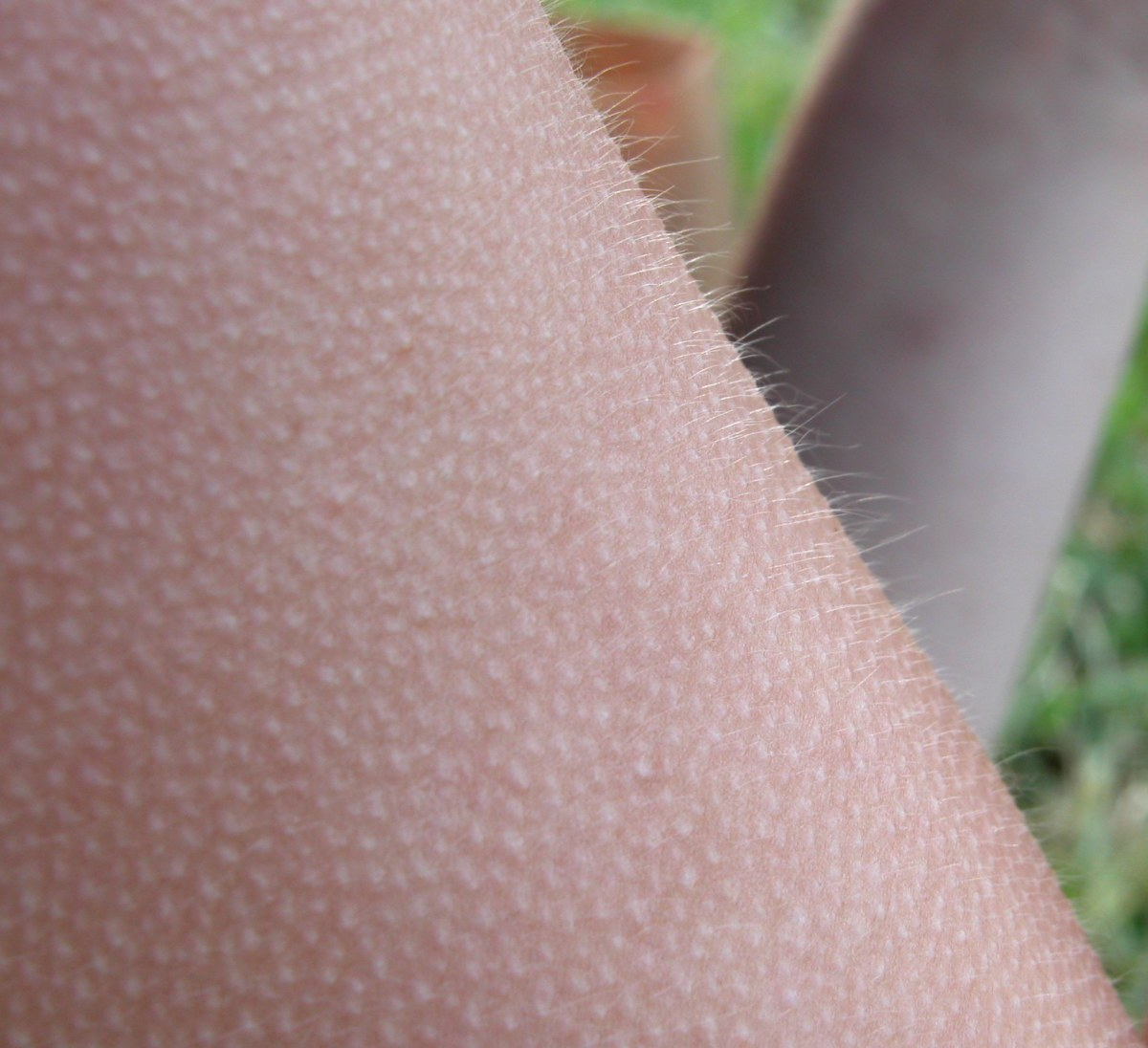 Some sceptics claim that ASMR is nothing more than goosebumps.