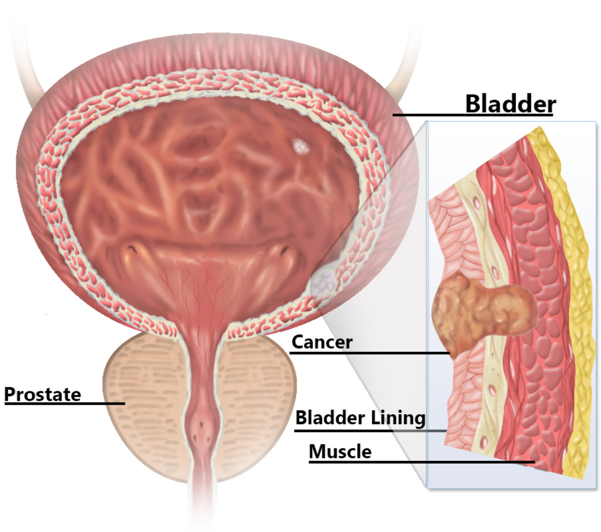 Diagram of cancer in the bladder lining.