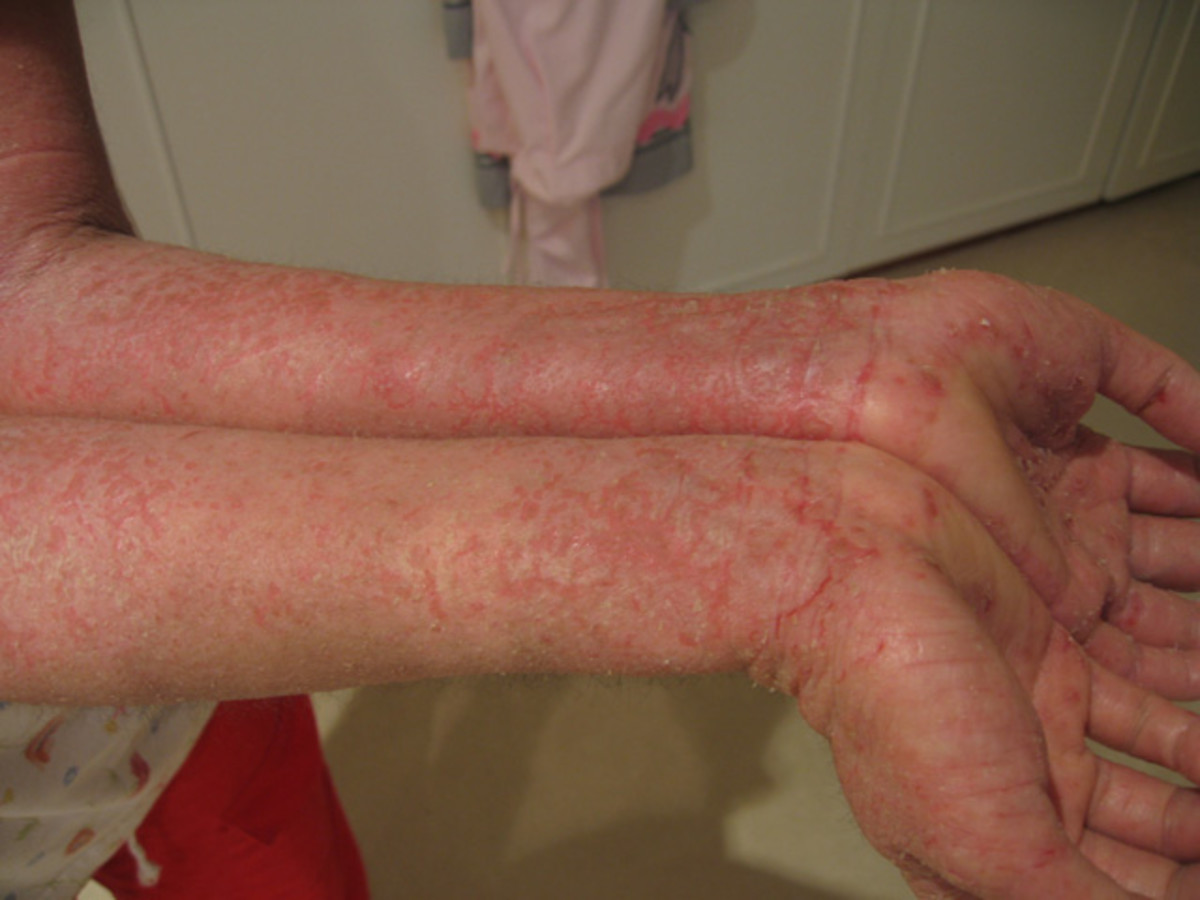A severe form of eczema on the forearms.