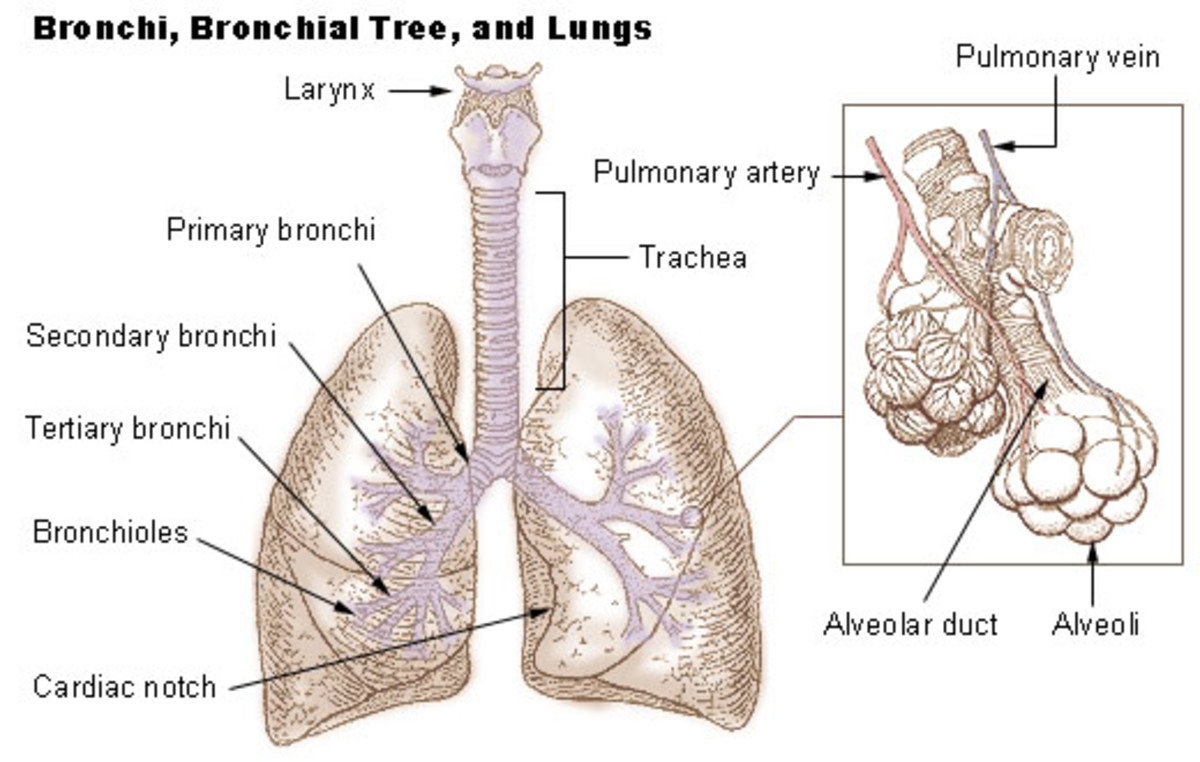 Bronchiectasis - Irreversible Lung Disease