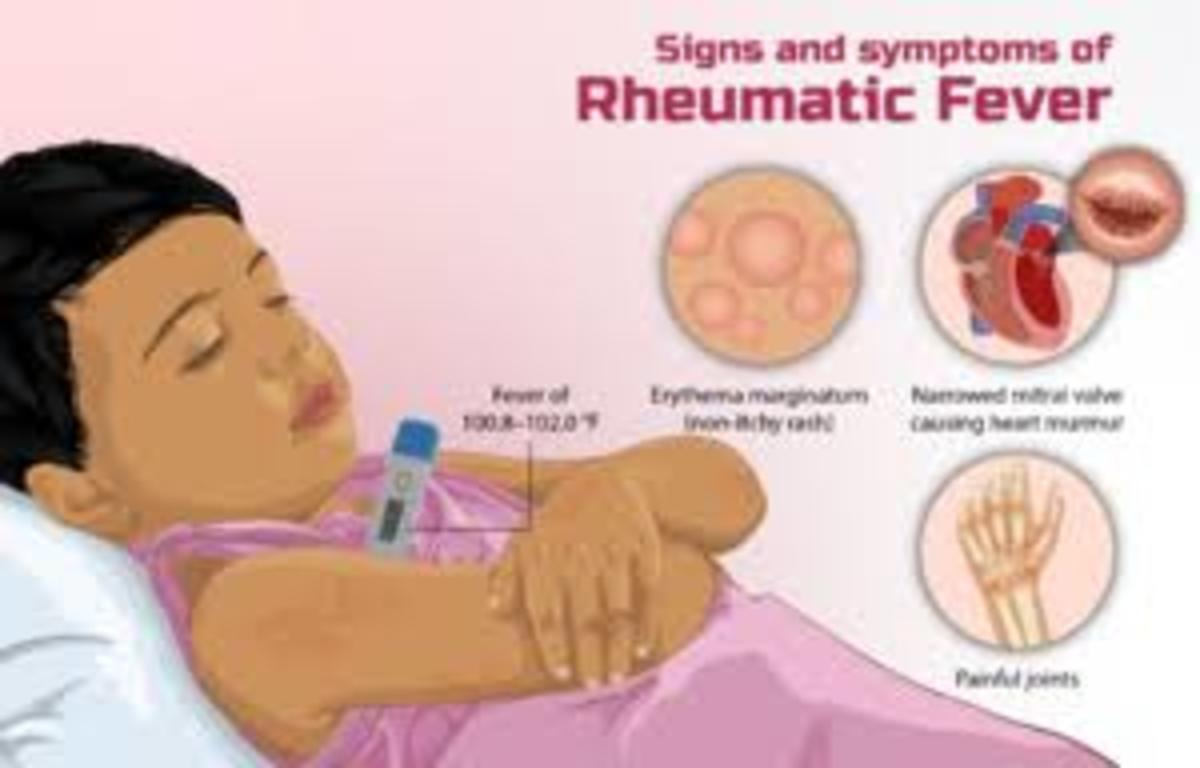 Rheumatic Heart Disease Levels of Prevention