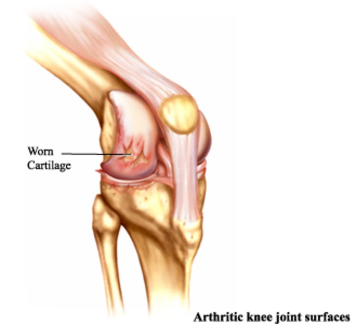 Osteoarthritis or degenerative joint disease is the chronic breakdown of cartilage.