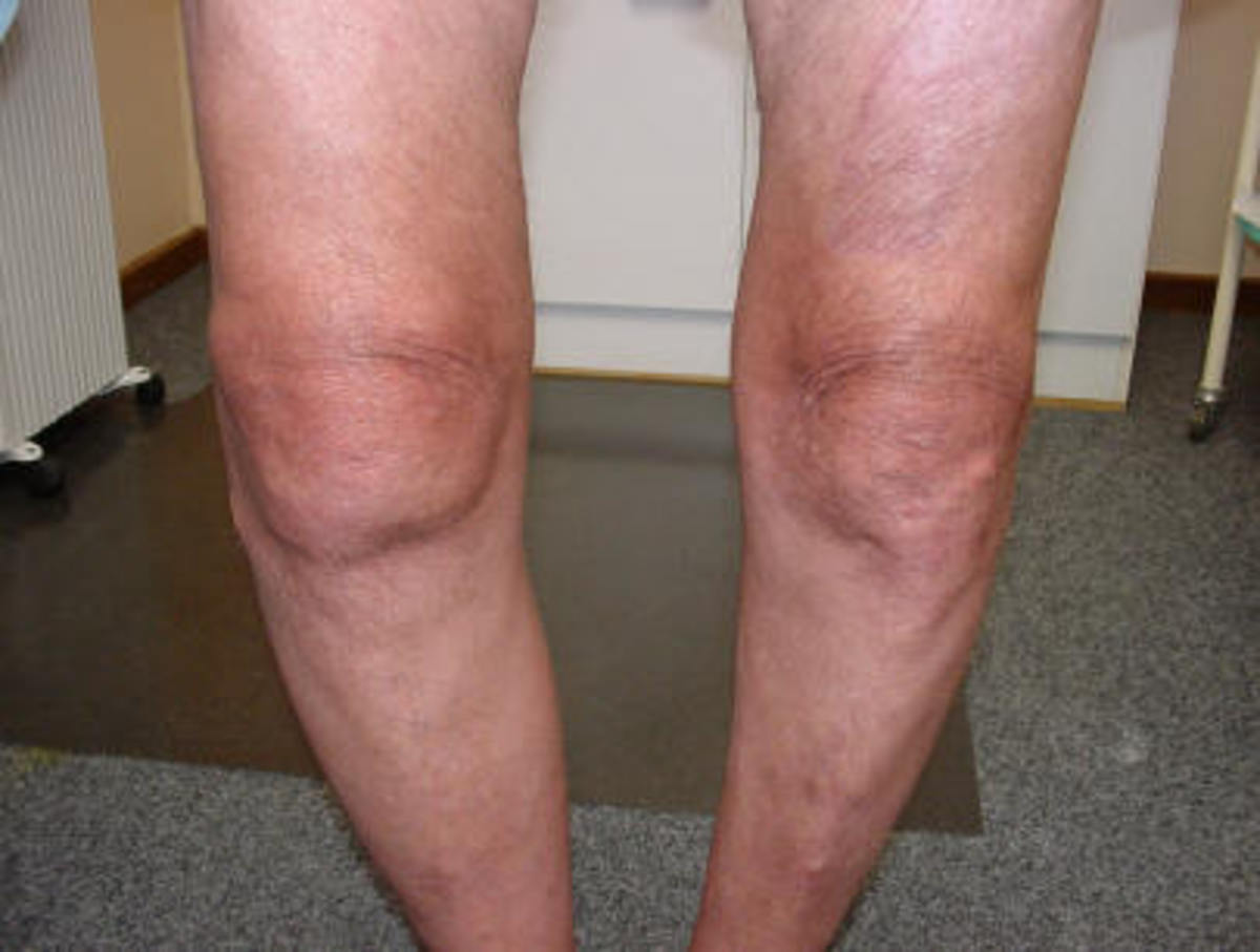 A man suffering from osteoarthritis of both knees