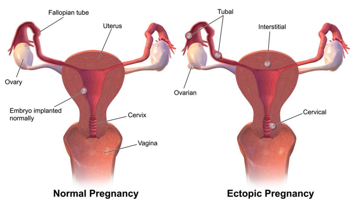 womens-illnesses-be-aware-of-the-possibility-of-an-ectopic-pregnancy