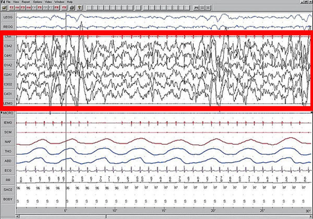 Polysomnogram demonstrating SWS, stage four. High amplitude EEG is highlighted in red.