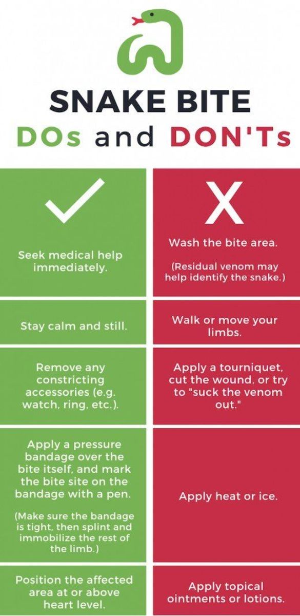 What to do (and not do) in the event of a snake bite.