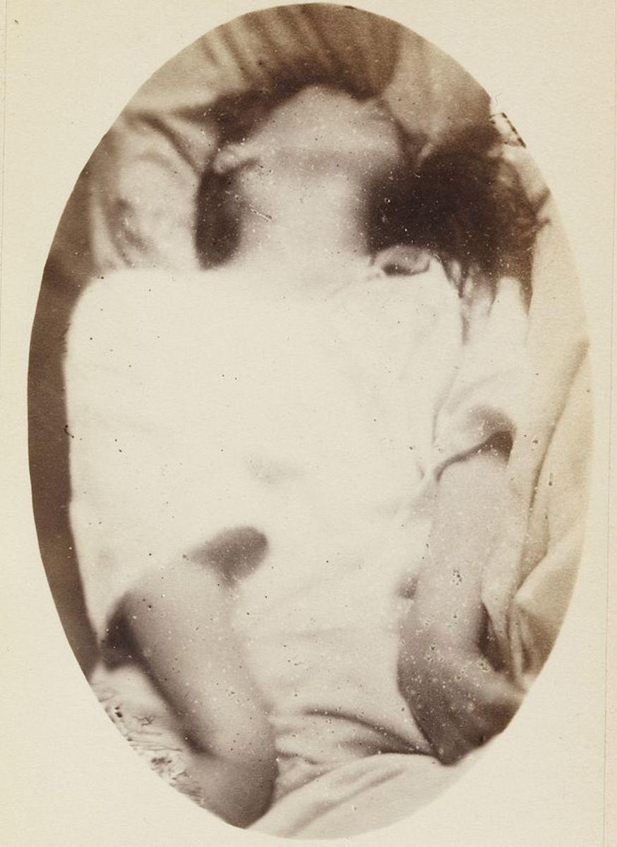 A still image of a generalized seizure