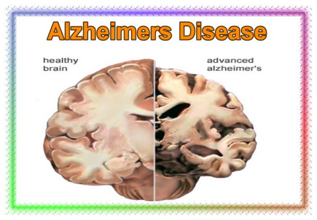 Image of Alzheimers Disease