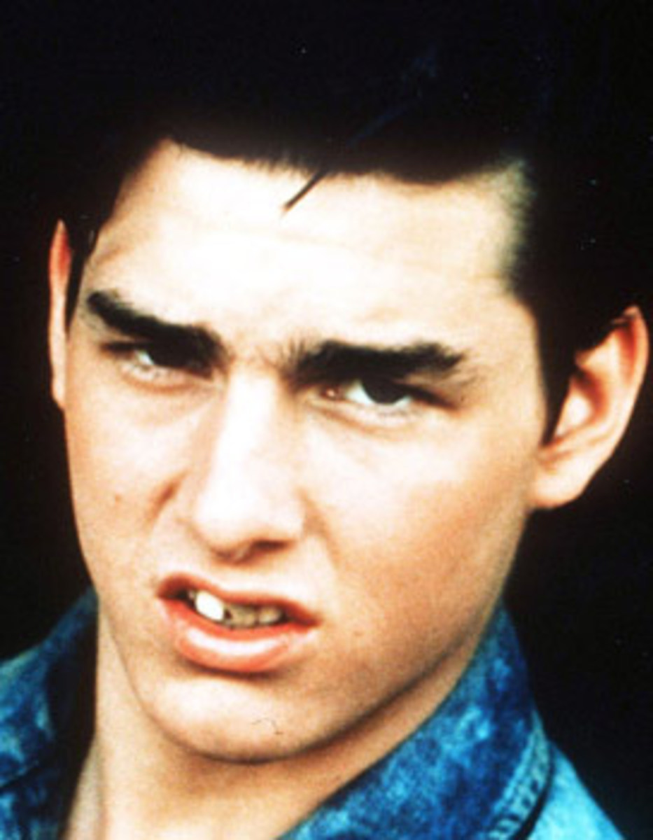 Tom Cruise – Along with a nose job, the mega-star had major dental work early on in his career to make him larger-than-life.