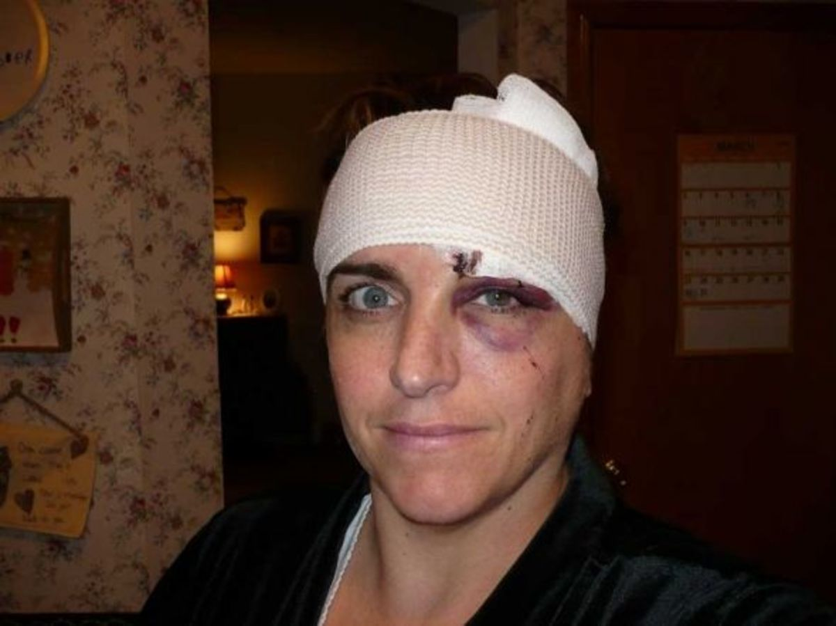 03/31/08 10PM – 36 hours after the accident