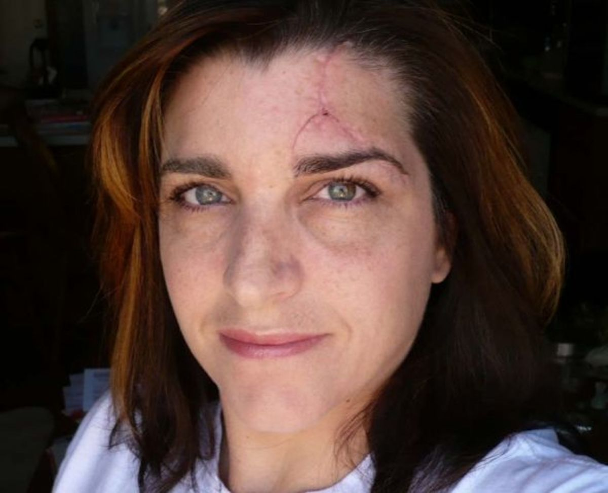 """April 19, 2008 – 20 days after the accident.The Scar is shaping up. It's to a point now where it feels worse than it looks. And the word """"feel"""" is a strange way to put it. Basically, my head is numb from the center of my forehead, over to the lower c"""