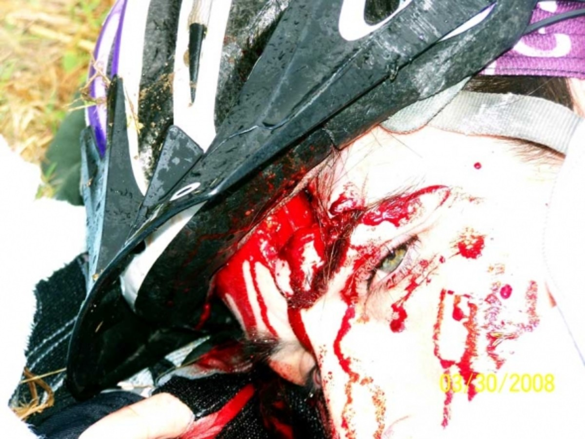 """I remember the moment this one was shot. I thought """"very cool"""". As I was lying there, I could see the blood running down onto my gloves. It was a river and I kept thinking how I wished it would just be a drip or a trickle. Check out the helmet. It de"""