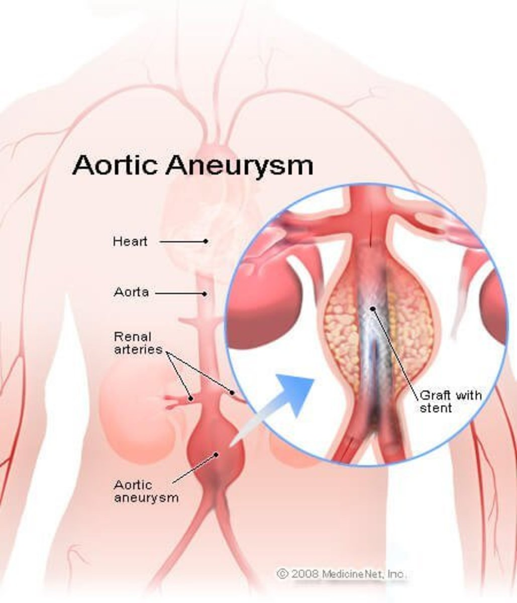 Abdominal Aortic Aneurysm Facts