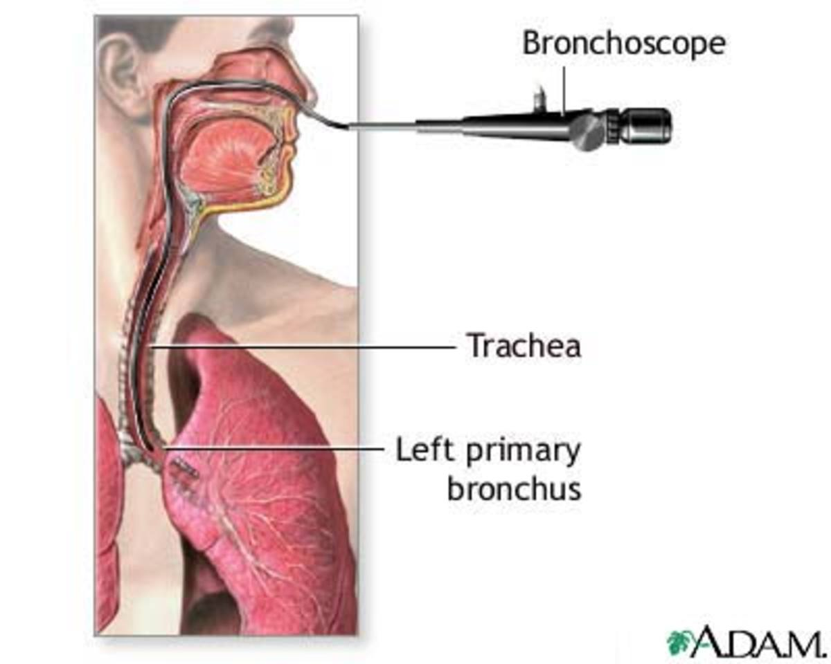 Picture showing a bronchoscopic procedure.