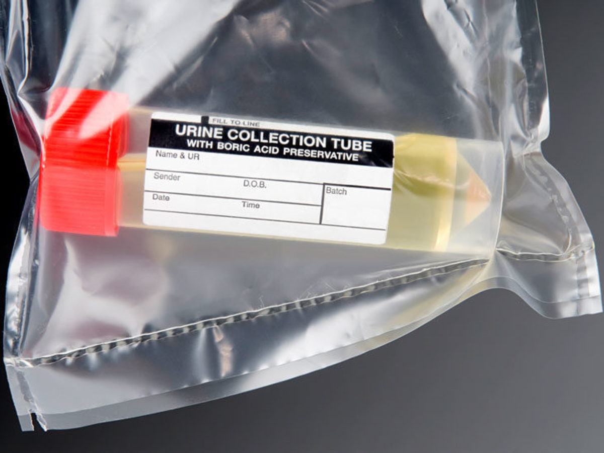 Urine Collection Tube