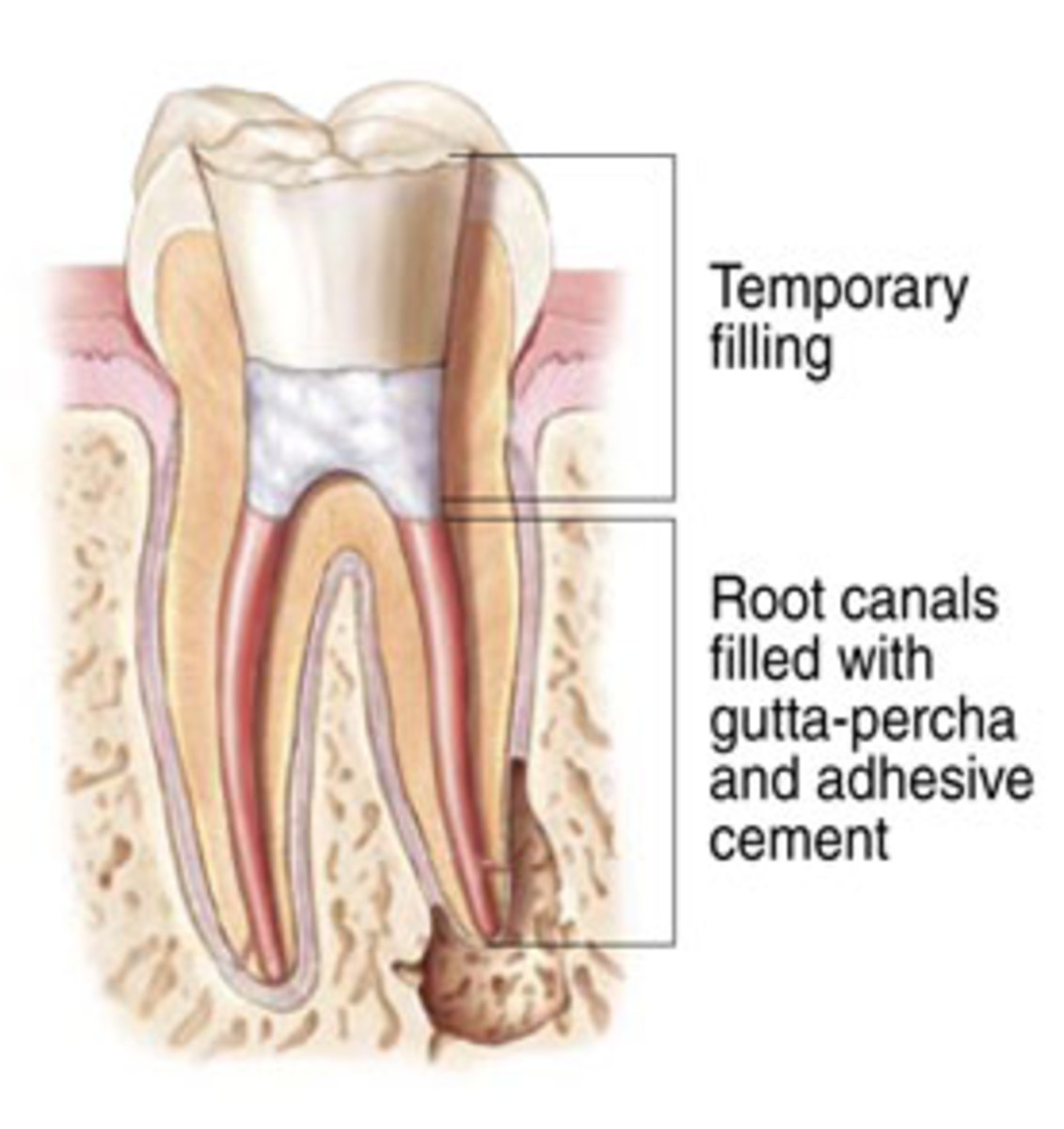 Why You Should Avoid A Root Canal