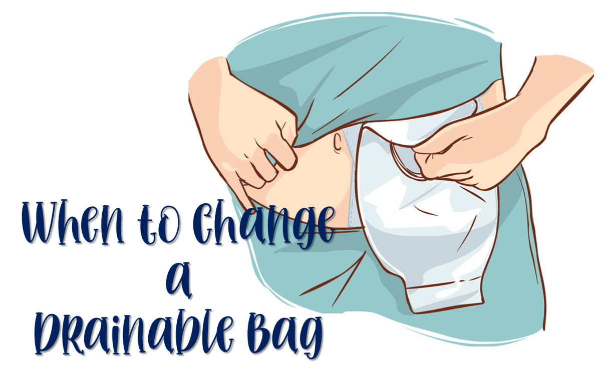 How Often Can You Reuse Drainable Colostomy Pouches? My Personal Experience