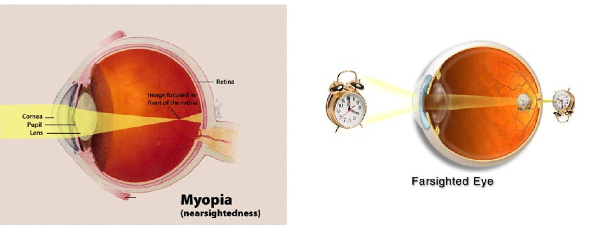 Myopia (nearsightedness) and Hyperopia (farsightedness).