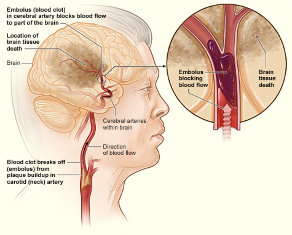 What Does a Stroke Do to Your Body