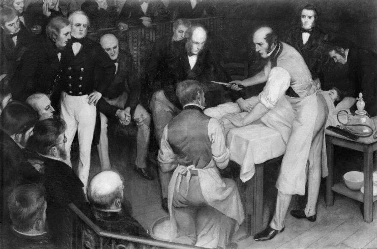 This 1912 painting by Ernest Board depicts Robert Liston about to amputate a patient's leg before an admiring crowd.