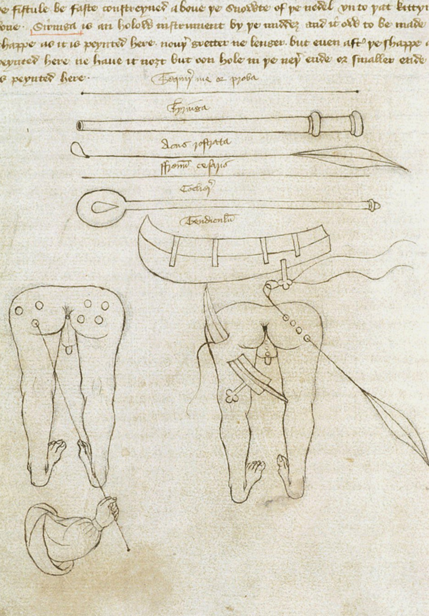 ILLUSTRATION BY SIR JOHN ARDERNE OF PROCEDURE TO CURE KNIGHTS OF ANAL FISTULA