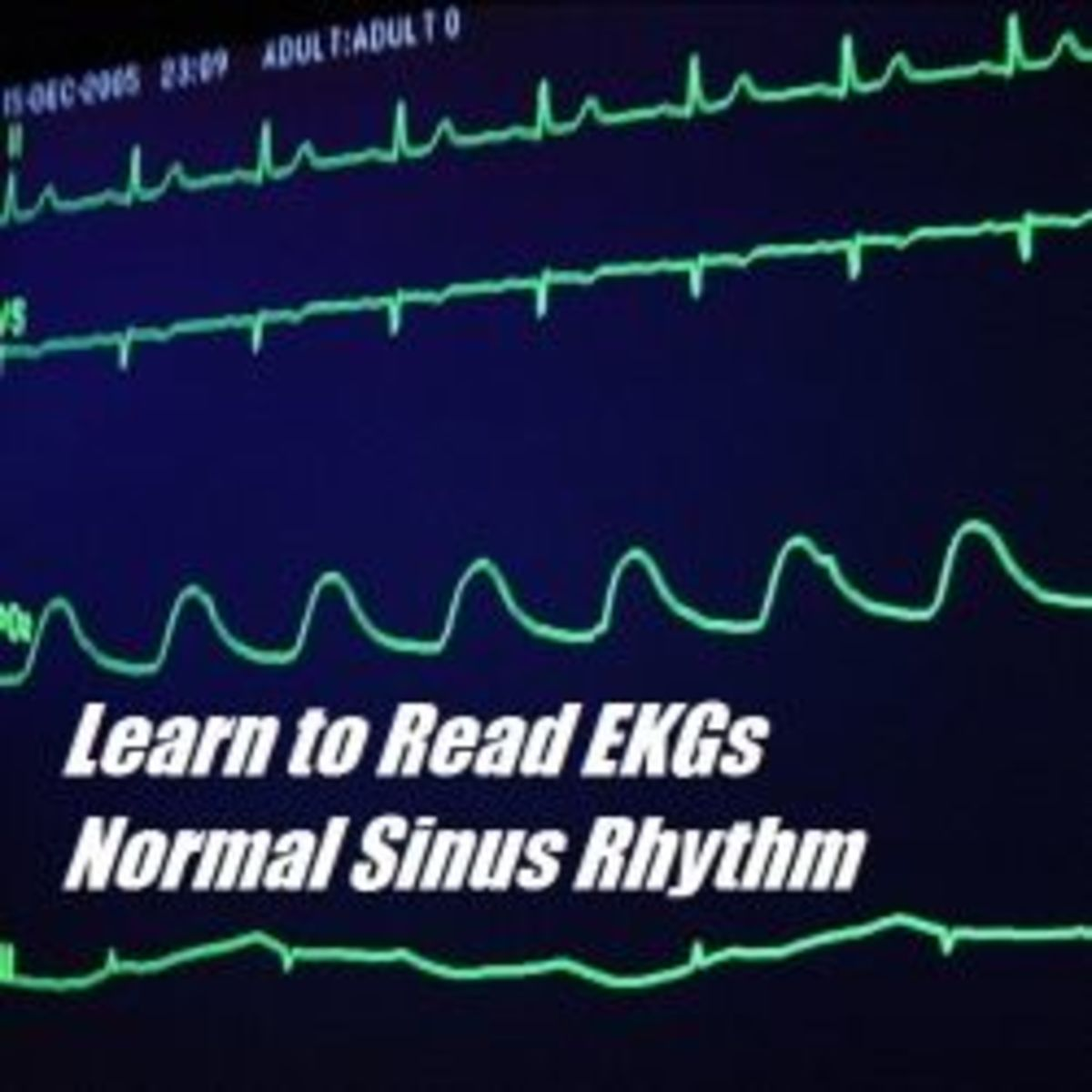 The Basics of EKG Interpretation and Rhythm Recognition: Normal Sinus Rhythm