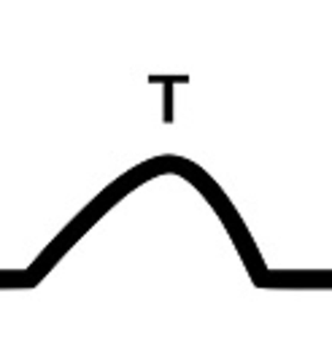 EKG T wave