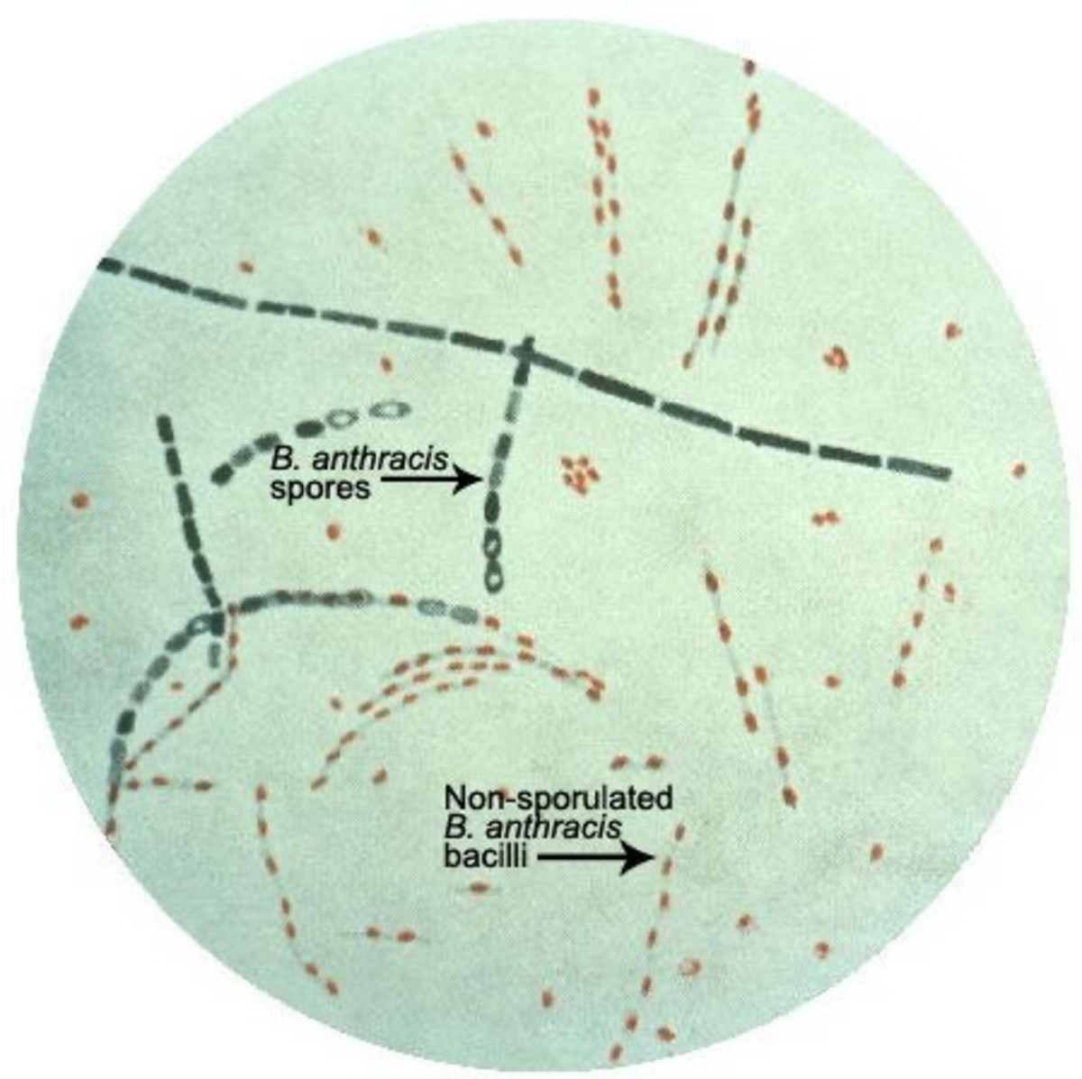 Microscopic image of Bacillus anthracis