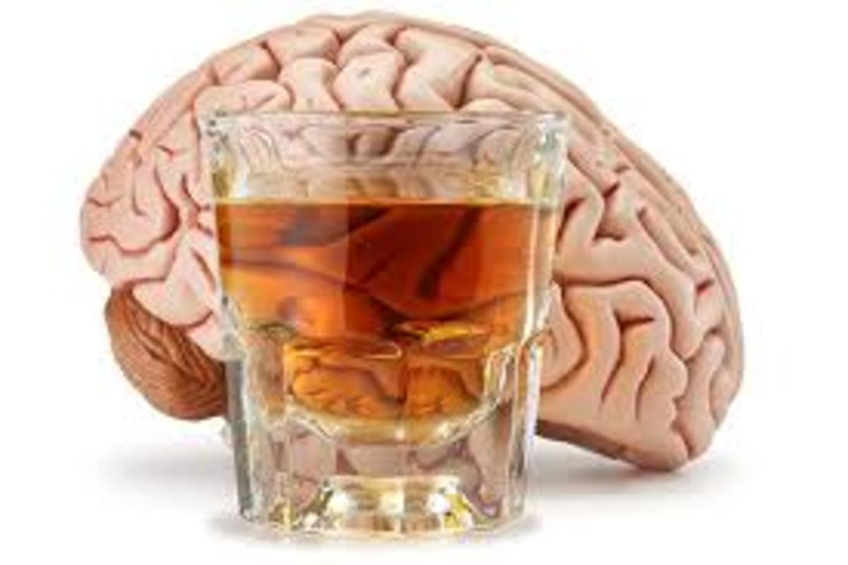 What is Alcohol-Related Dementia?