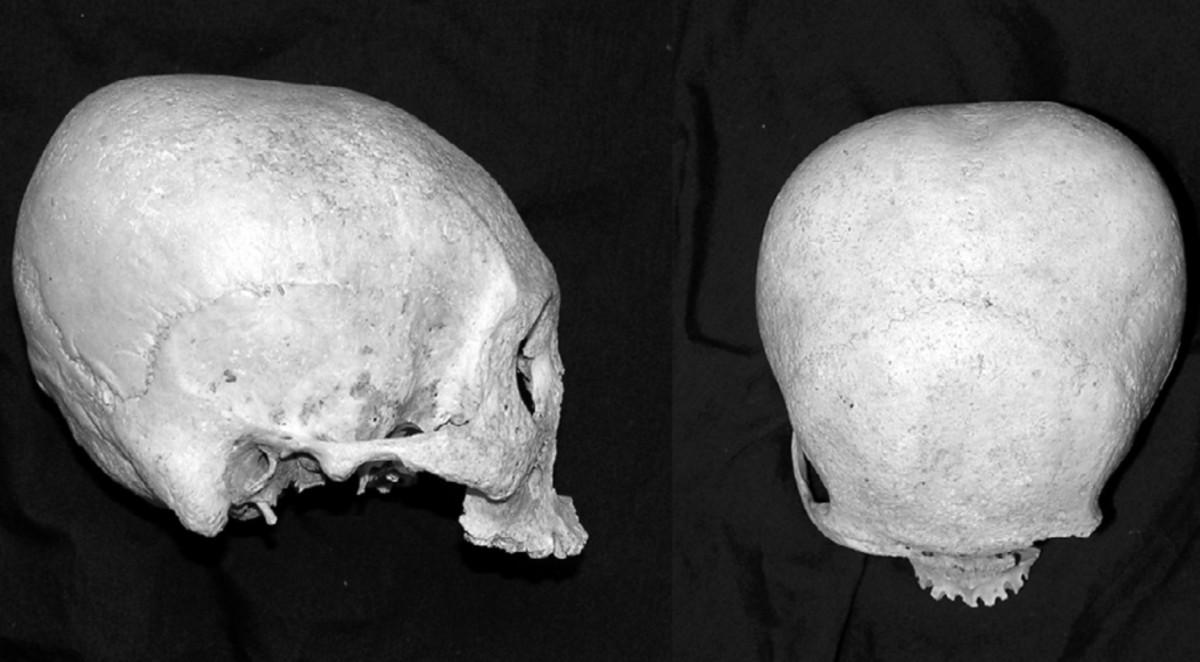 The Precolonial Visayan Practice of Skull Deformation