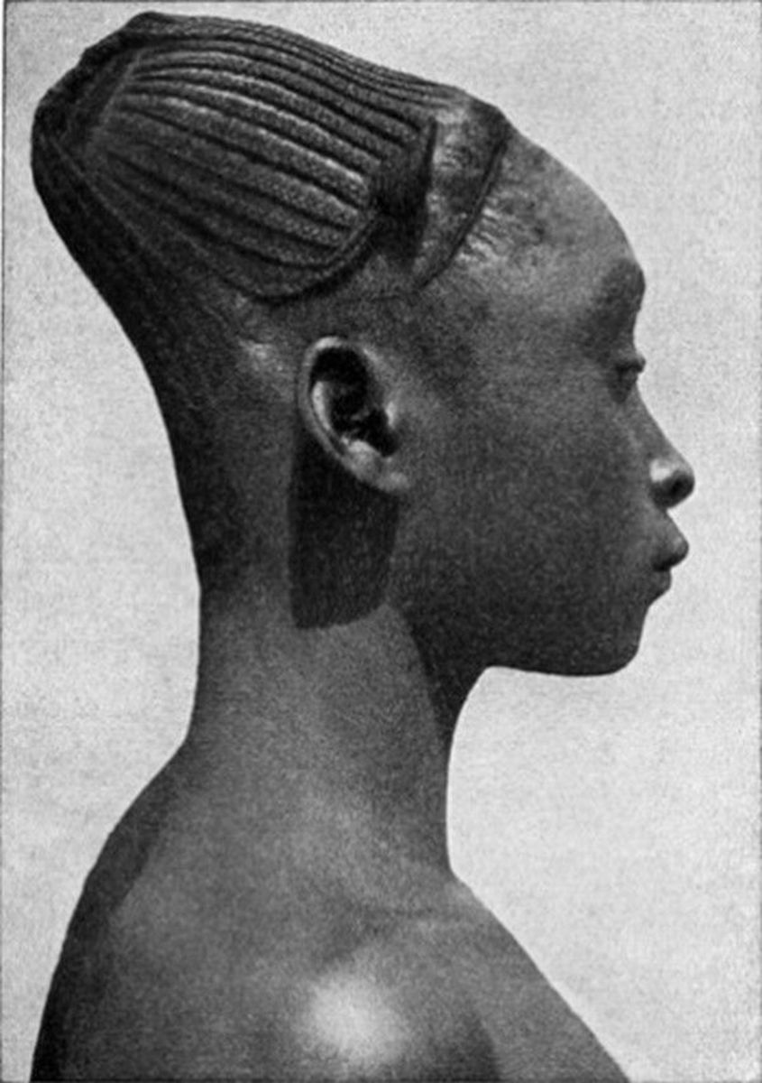 Artificially shaped skull of a tribe member in Congo.