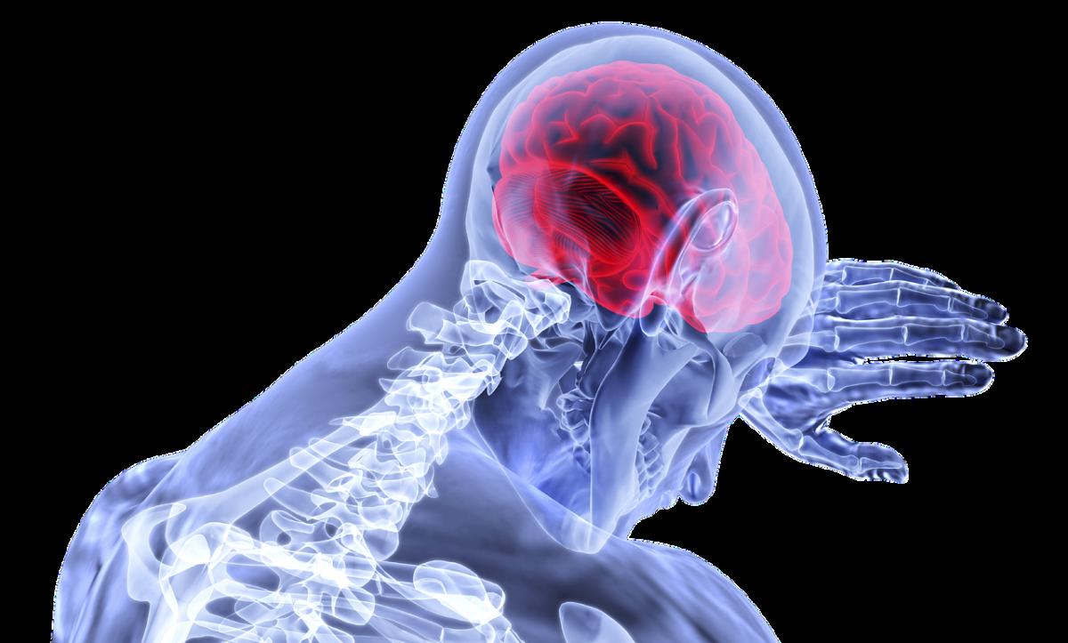 Brain Swelling