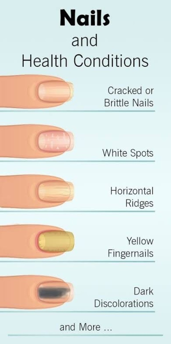 How to Get Strong & Long Nails Naturally Without Any Commercial Products